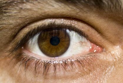 Napięcie, zmęczenie oczu może powodować bóle głowy